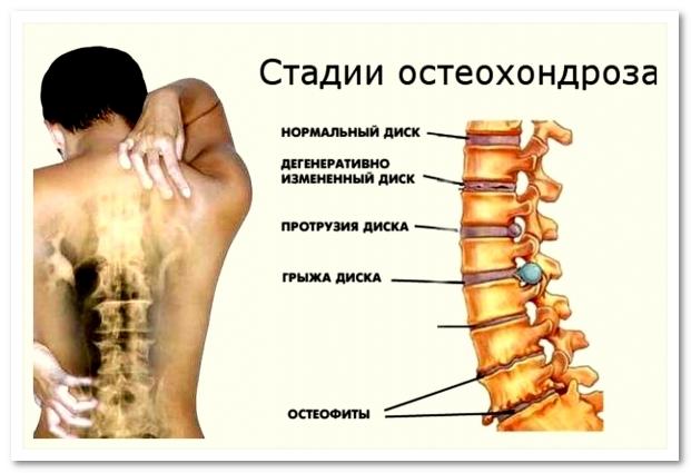 Секретно! Гимнастика Бутримова нормализует кровообращение и восстановит правильное положение позвонков шеи