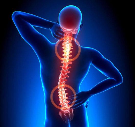 """Эффективное упражнение при остеохондрозе от доктора Бубновского - """"ГУСЕНИЦА"""""""